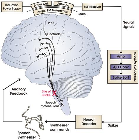 brain470