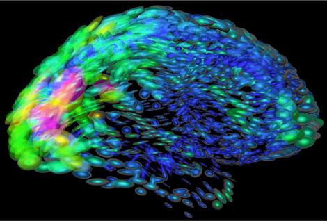 brain_cells470